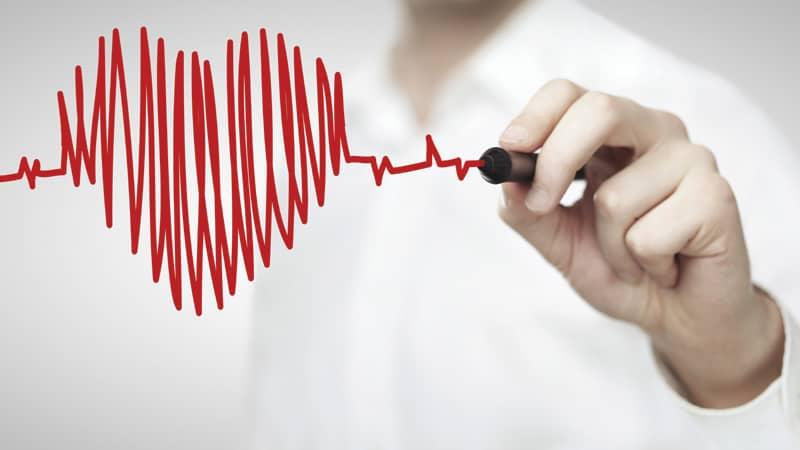 Cardiac_Rehab Image
